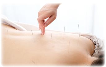 美容鍼灸のイメージ画像