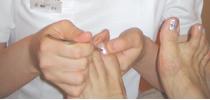 巻き爪矯正の施術様子画像