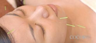 美顔鍼(びがんばり)の施術様子画像