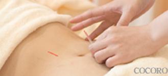 妊活鍼の施術様子画像